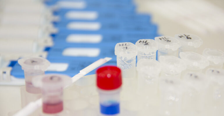 Rapid drug tests – how do they work?